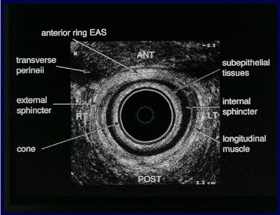 endoproktiko.jpg